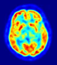 brain_imaging_techniques_pet