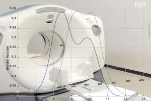 neuroelectrics-graph