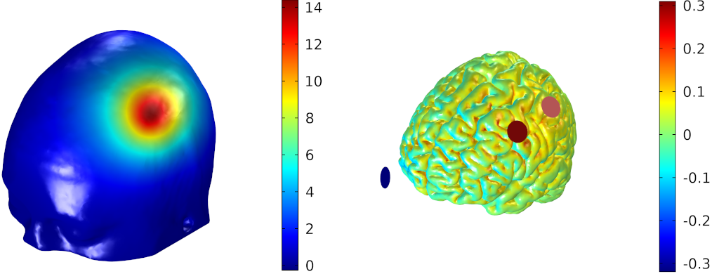 The importance of modeling in tCS – Blog Neuroelectrics
