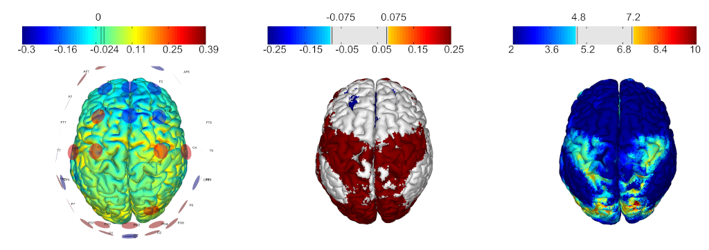 optimization-for-a-complex-cortical-network