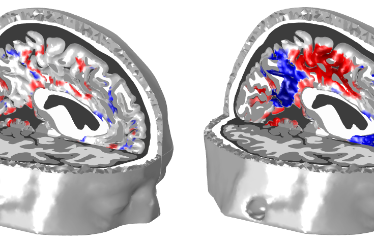 cortex_activation