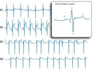Heart beat monitoring – what can we learn?