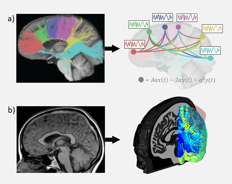 two-types-of-whole-brain-models