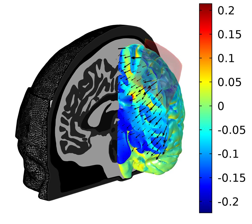 tcs-brain