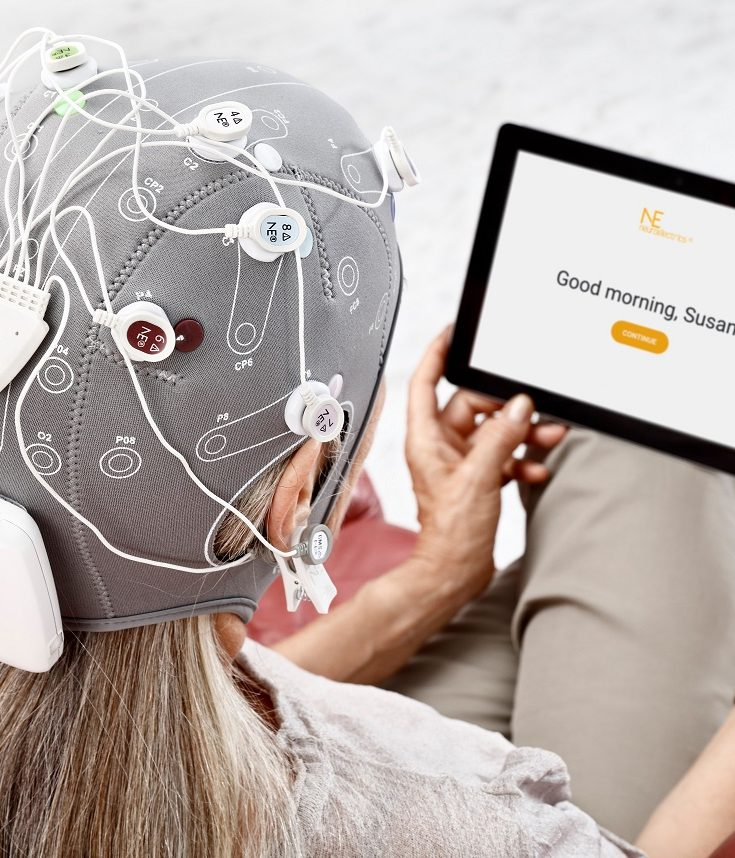 Starstim-Home tDCS for Depression